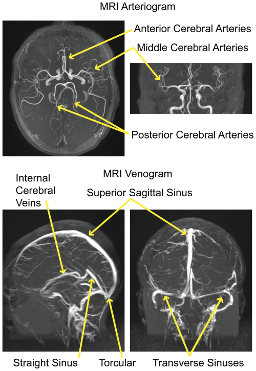 Depiction of major arteries (top image) and veins (bottom). Not overlap with areas of greatest G-cause (below).